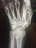 Wrist x-rays of colle's fractures on distal radius of hand