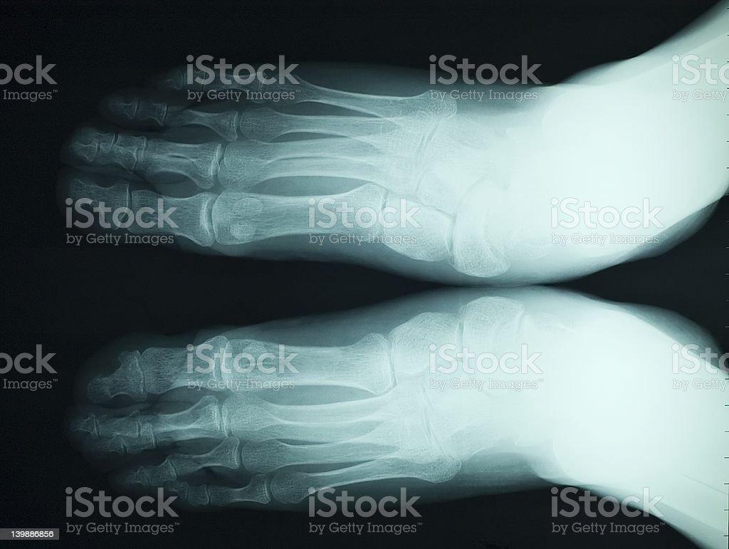 x ray feet stock photo