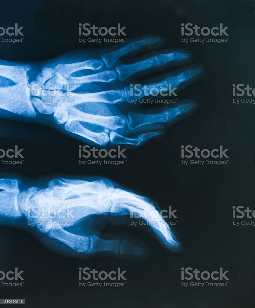 x ray Image hands stock photo