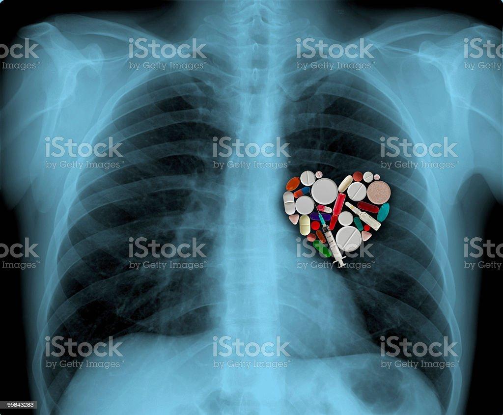 X-ray and medicine heart stock photo
