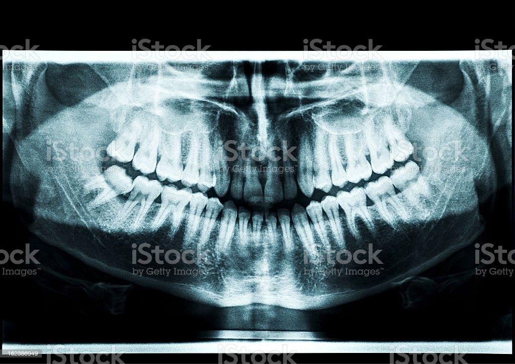 x-ray atm stock photo