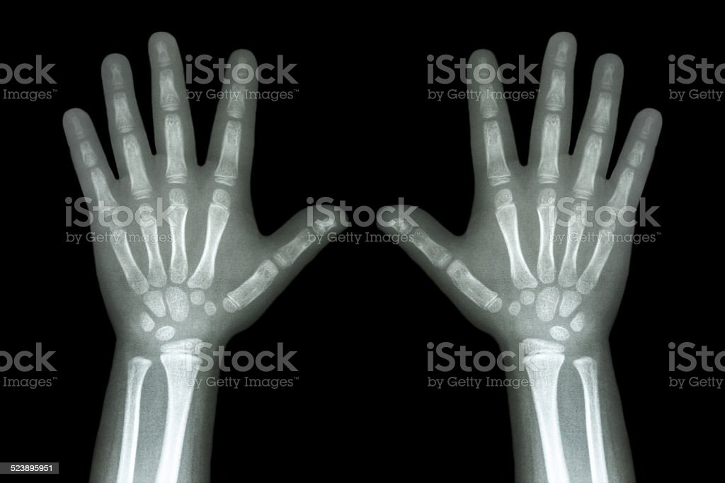 X-ray both child hands on black background stock photo