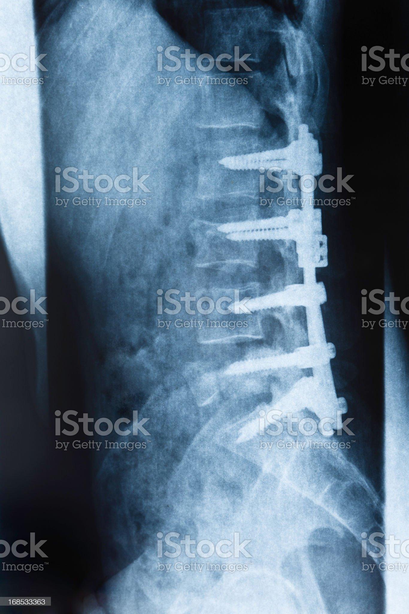 Xray broken backbone royalty-free stock photo