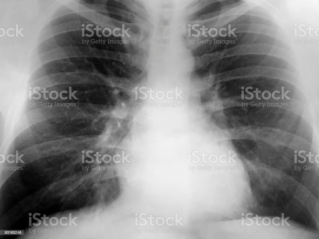 Xray Chest Positive royalty-free stock photo