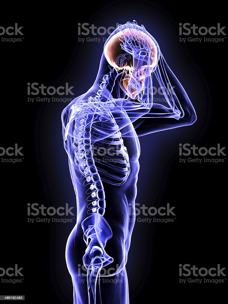 X-Ray Concussion of the Brain stock photo