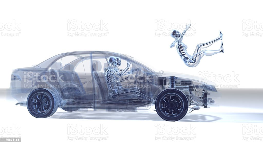 X-ray depiction of car accident stock photo