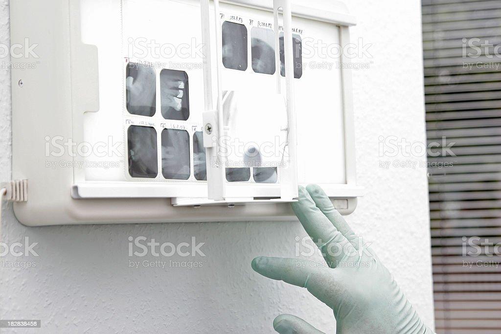 X-ray exam royalty-free stock photo
