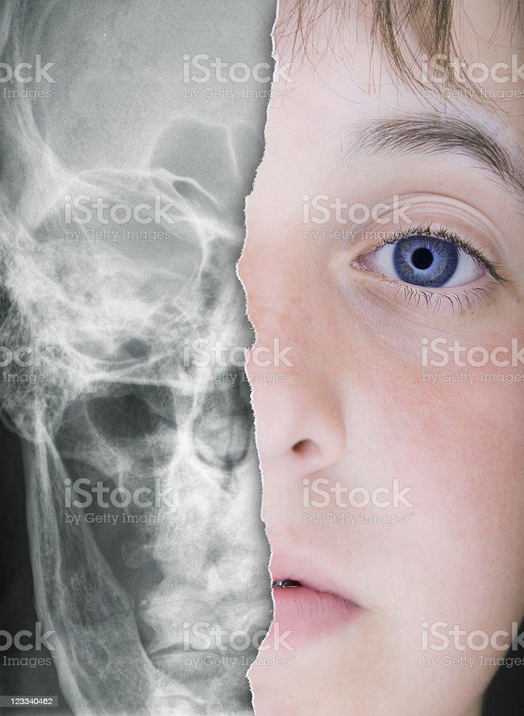 X-Ray Face royalty-free stock photo