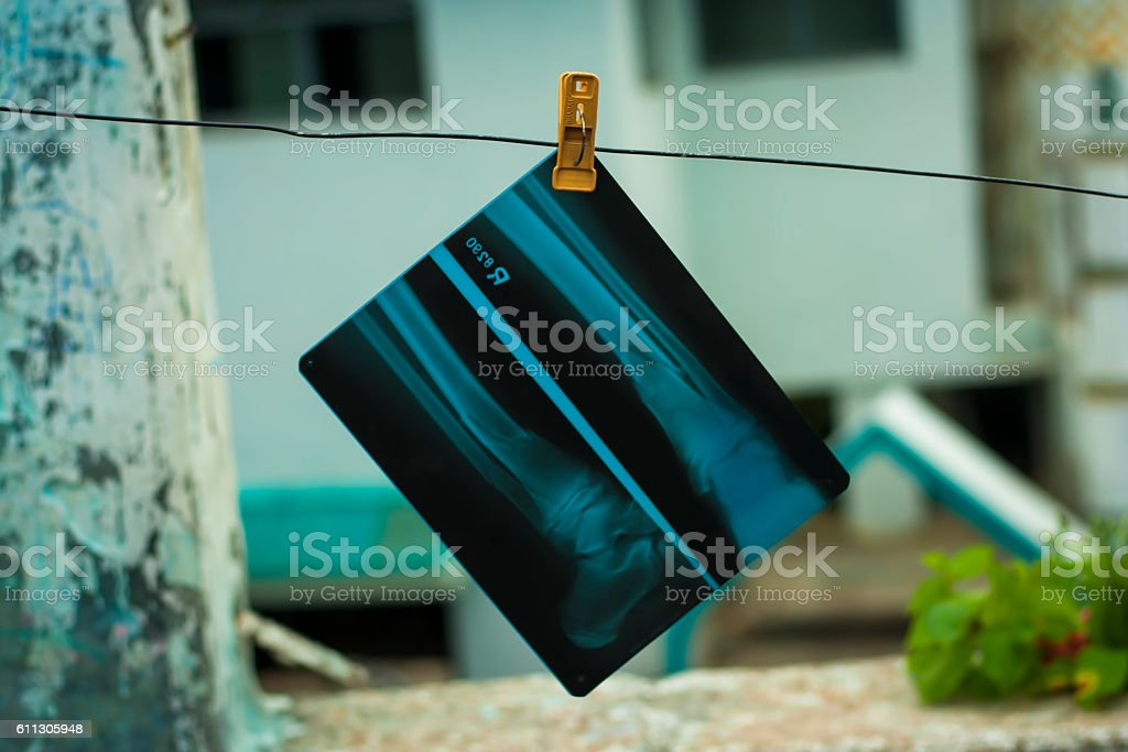x-ray film hanging on washing line. stock photo