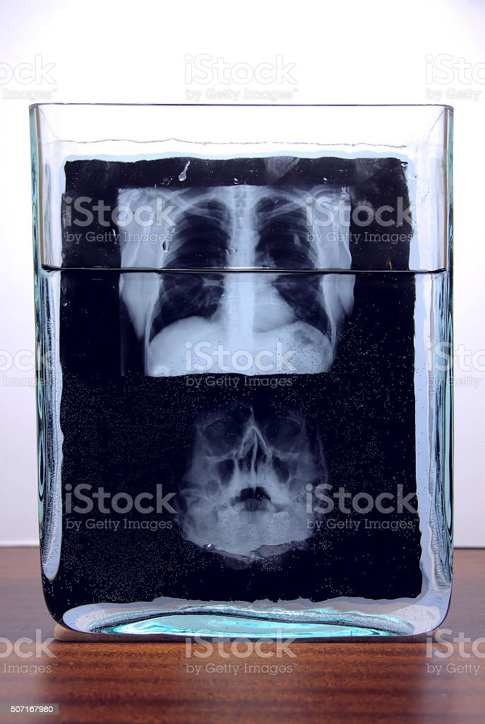 X-ray film of human skull and rib cage stock photo