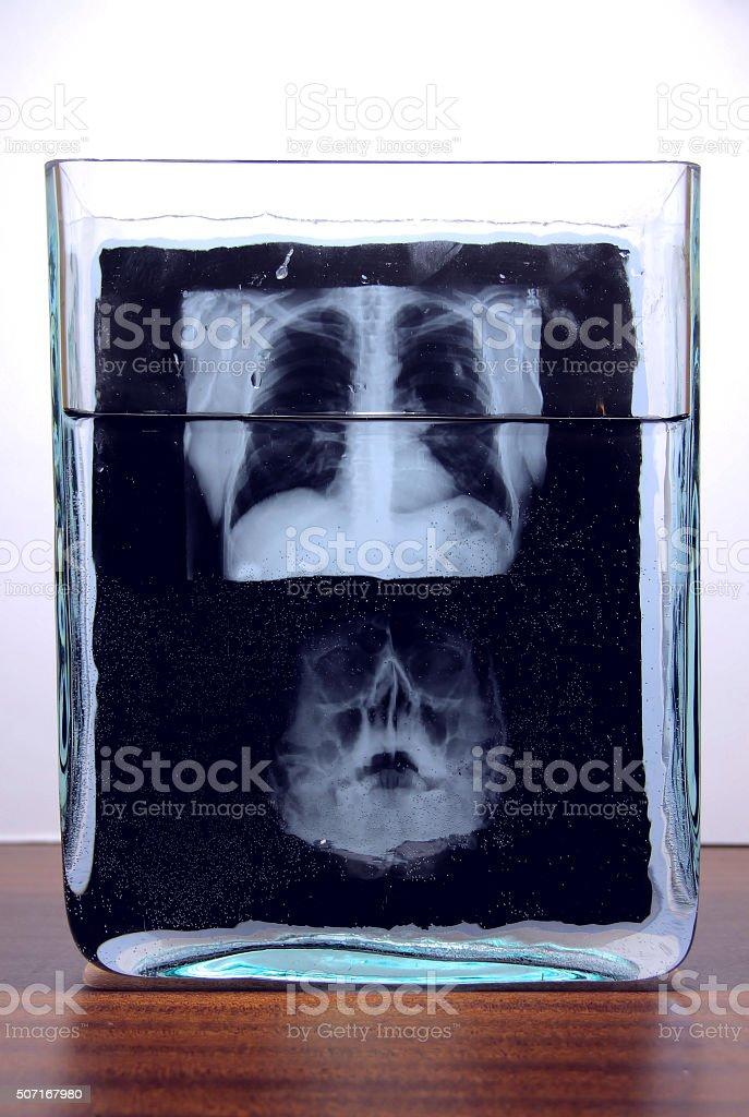 X-ray film of human skull and rib cage stock photo