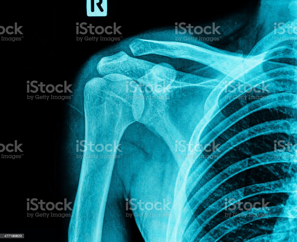 X-ray film of shoulder stock photo