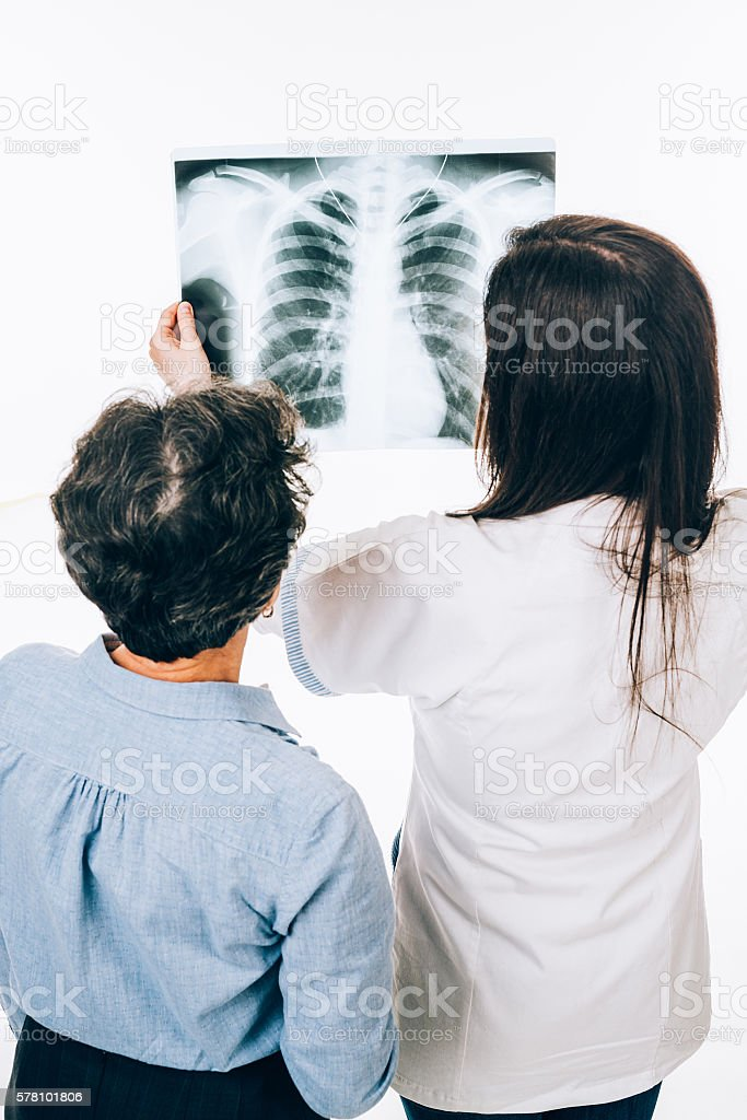 X-ray film stock photo