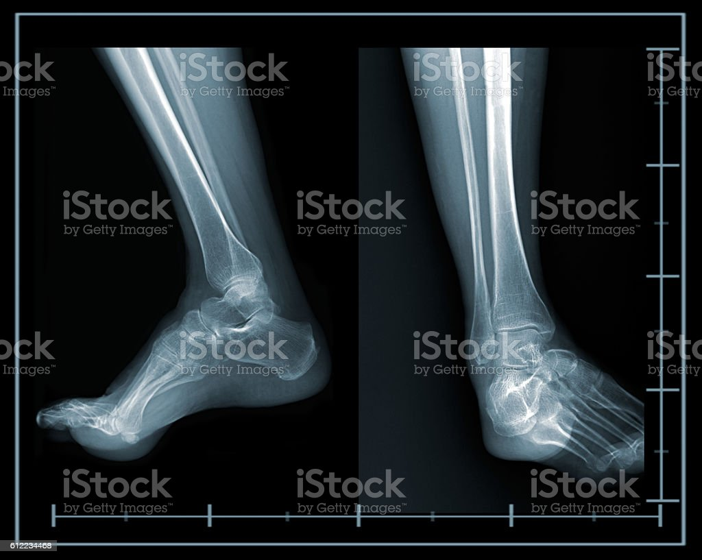 X-ray foot lateral and front view stock photo