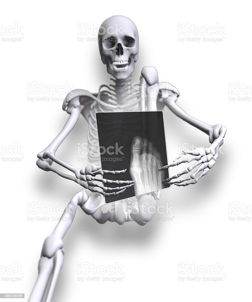 X-ray Foot royalty-free stock photo