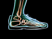 X-Ray Foot Scanning and Shoe Design