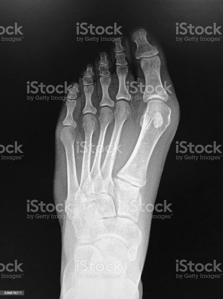 Xray Foot with Bunion stock photo