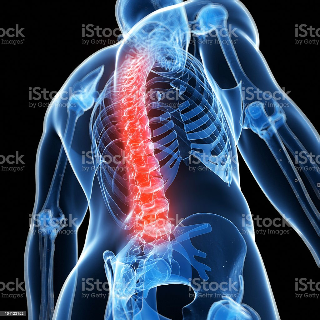 X-Ray graphic of torso with spine lit in red for back pain royalty-free stock photo