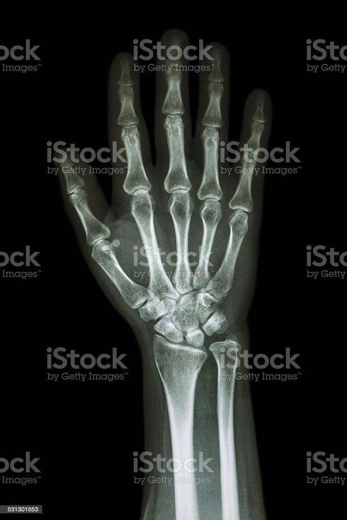 X-ray hand & forearm stock photo