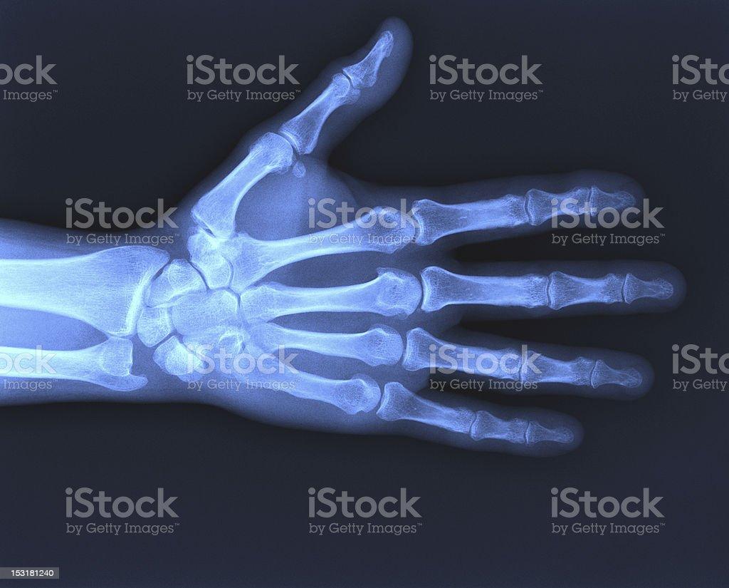 X-ray hand royalty-free stock photo