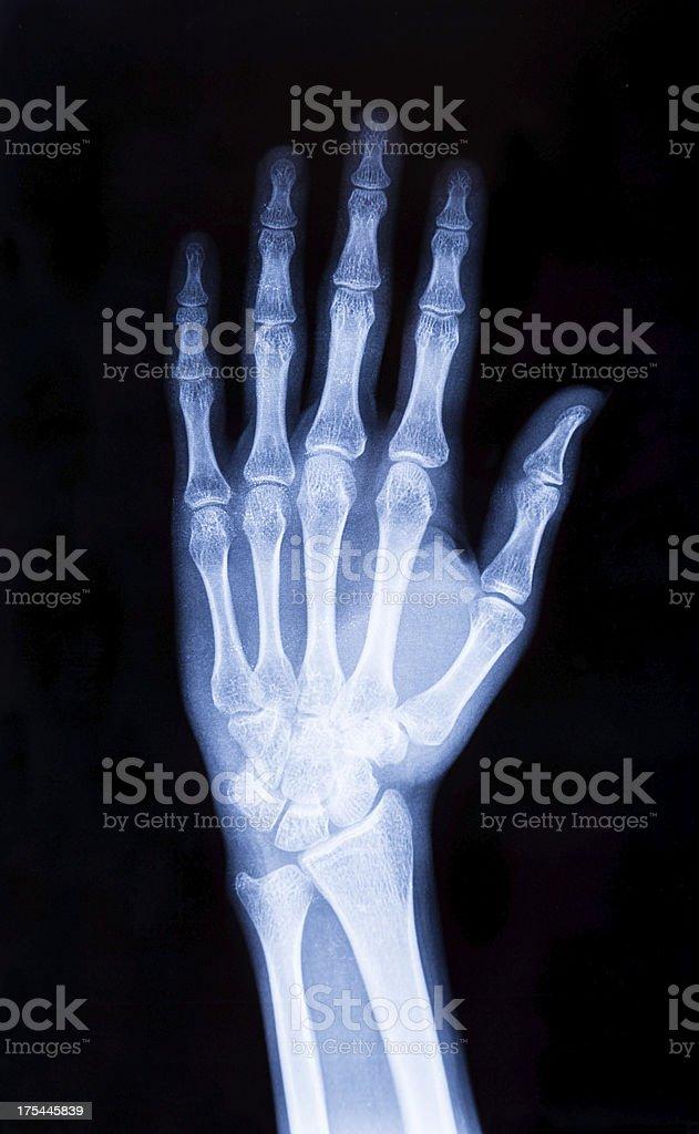 X-ray hand (XXXL) royalty-free stock photo
