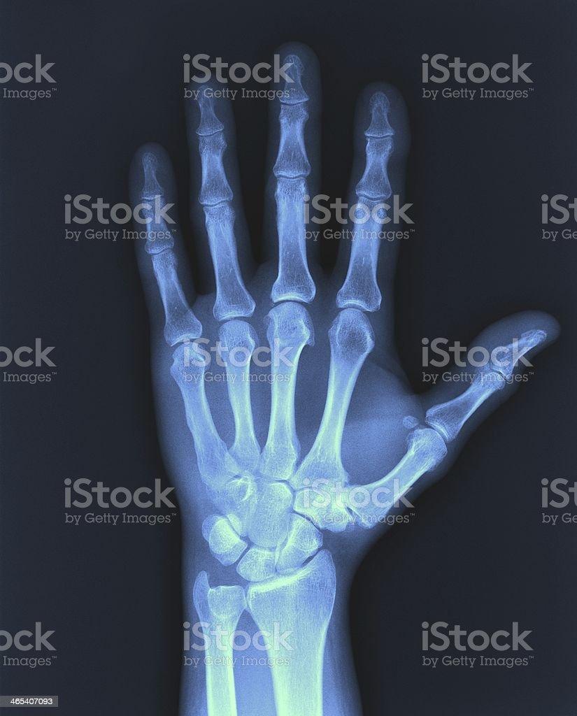 X-ray hand. stock photo