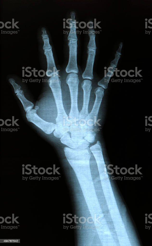 X-ray hand stock photo