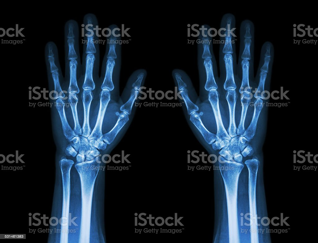 X-Ray Hands ( front view ) : Normal human hands stock photo