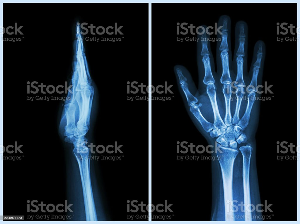 X-Ray Hands ( front & side view ) stock photo