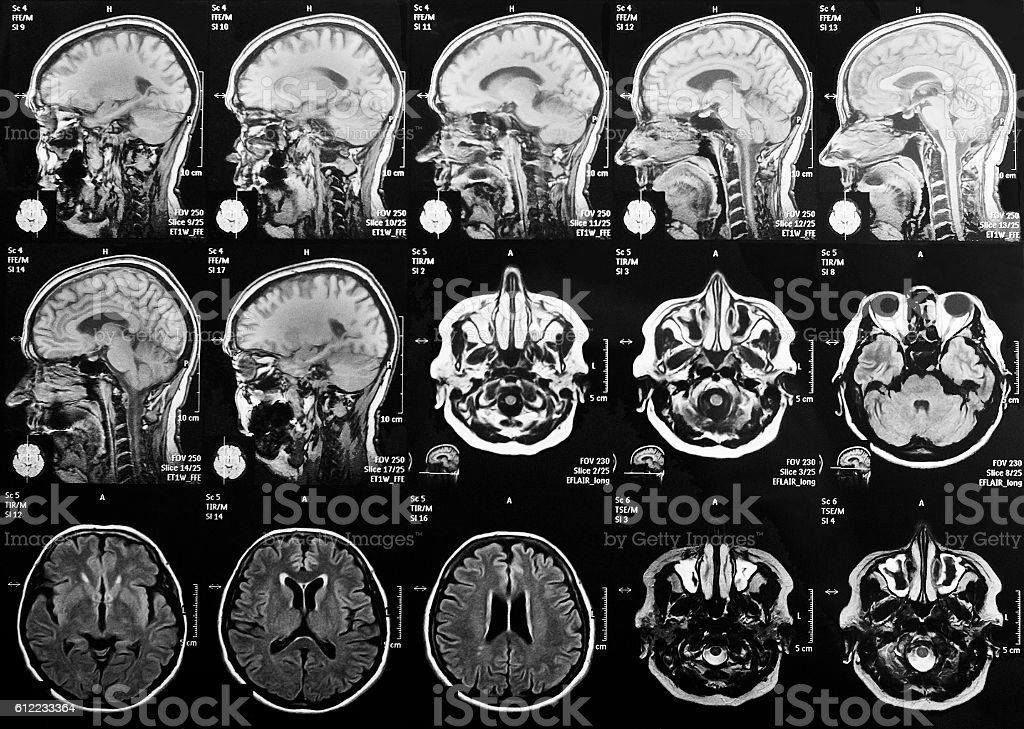 X-ray head and brain stock photo