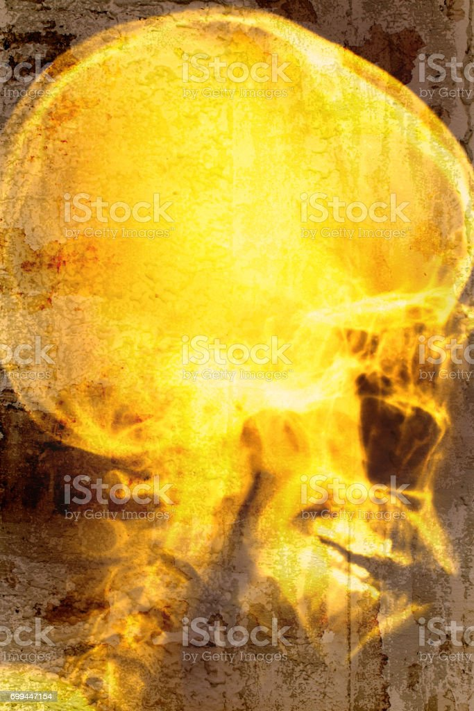 X-ray head of human overlap on old wall textured background. retro filter. stock photo