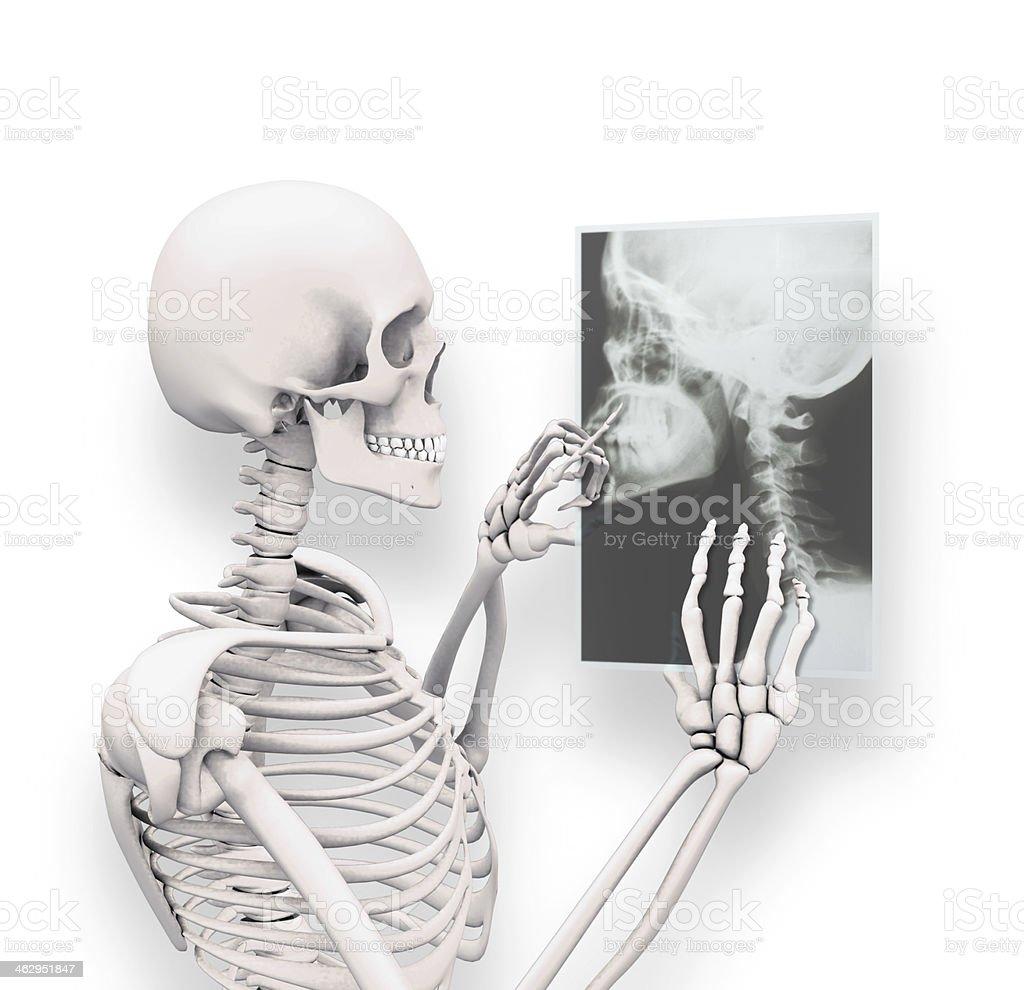 X-ray Head royalty-free stock photo