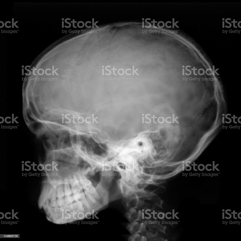 X-ray Head profile royalty-free stock photo
