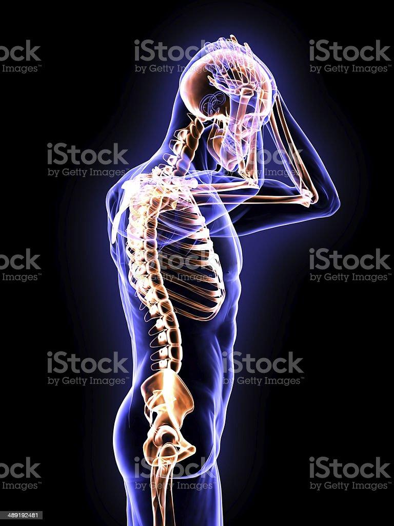 X-Ray Headache stock photo