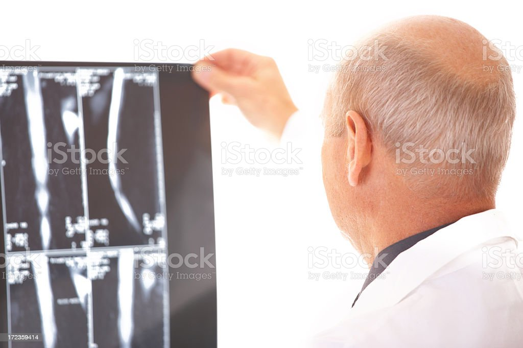 xray high contrast royalty-free stock photo