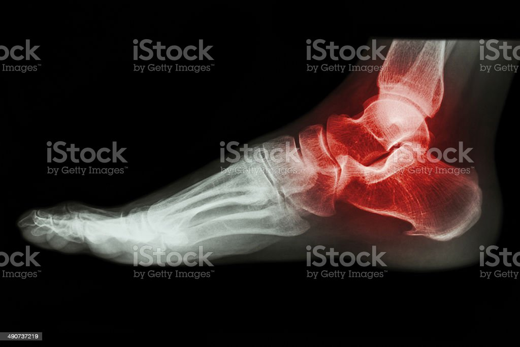X-ray human's ankle with arthritis stock photo