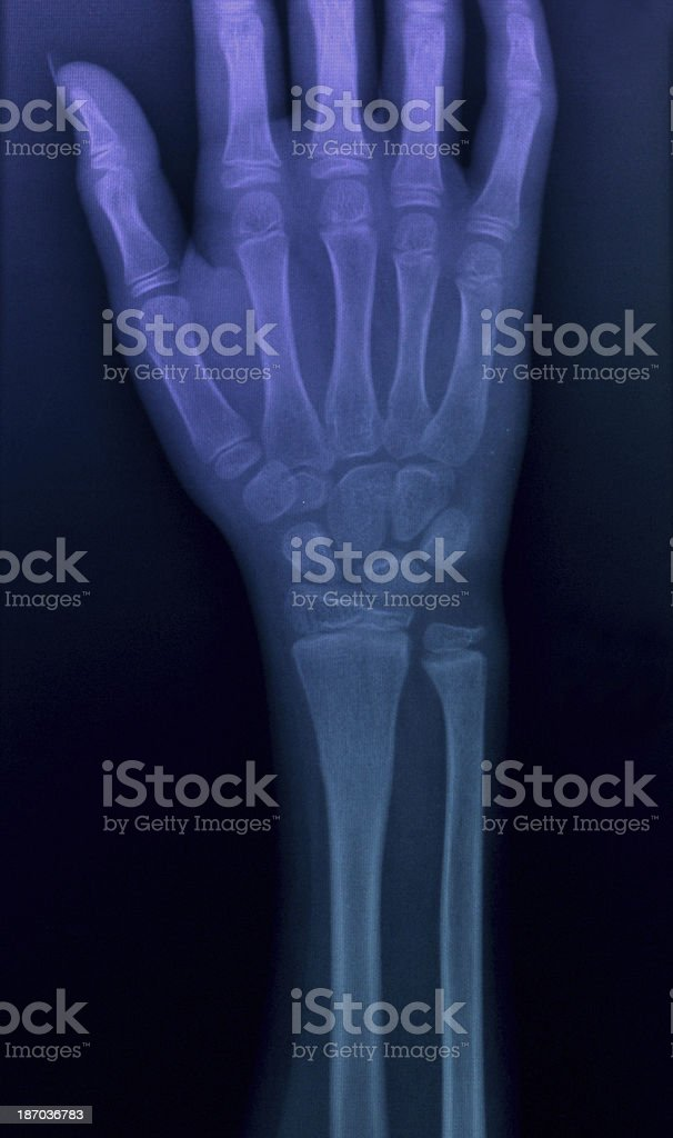 X-ray image hands royalty-free stock photo