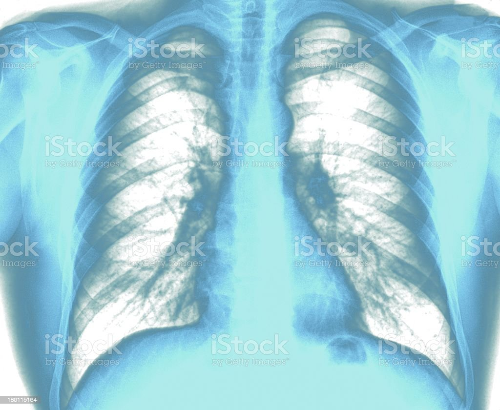 X-Ray Image Healthy Chest royalty-free stock photo