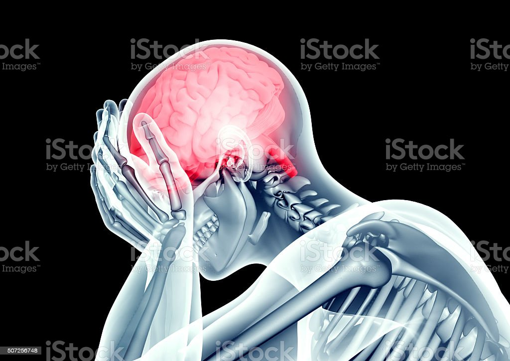 x-ray image human head with pain stock photo