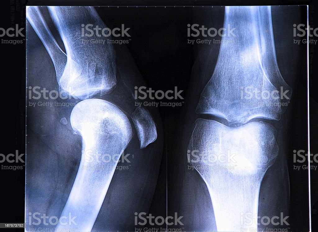 X-Ray image if the human knee royalty-free stock photo