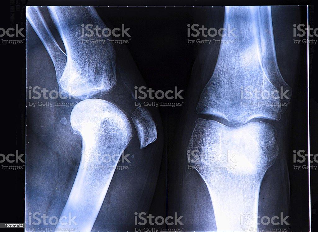 X-Ray image if the human knee stock photo
