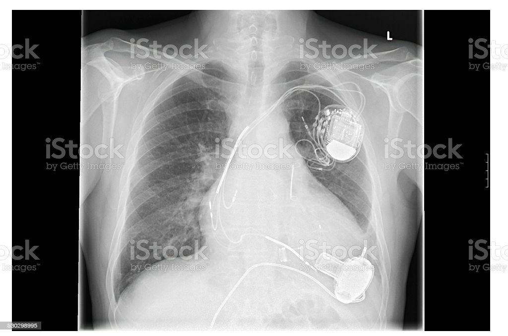 X-ray image, links, artificial heart pacemaker stock photo