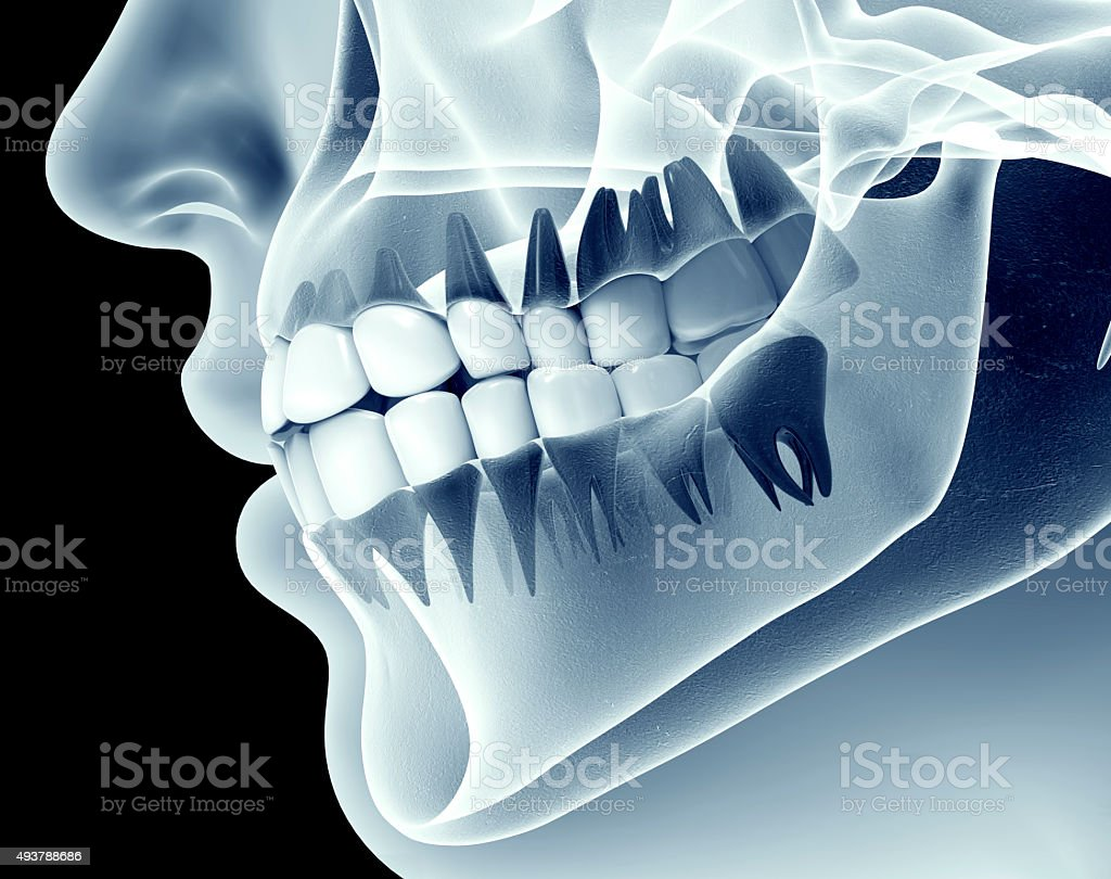 x-ray image of a jaw with teeth stock photo