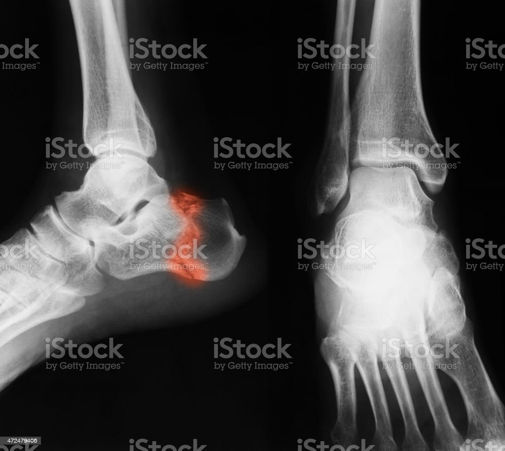 X-ray image of ankle, AP and lateral view. stock photo