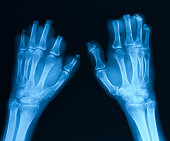 X-ray image of bilateral  hands, posteroanterior view