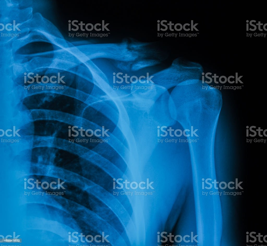 X-ray image of broken clavicle, AP view stock photo