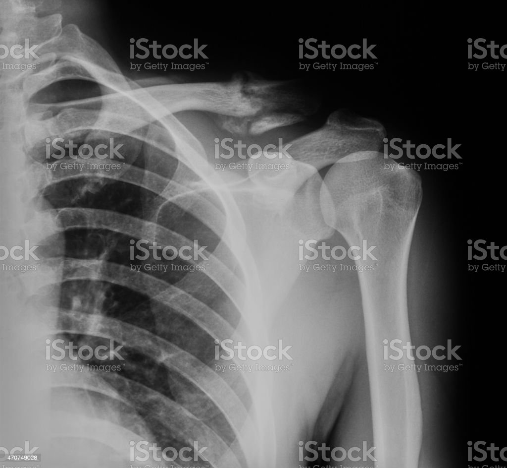 X-ray image of broken clavicle, AP view. stock photo