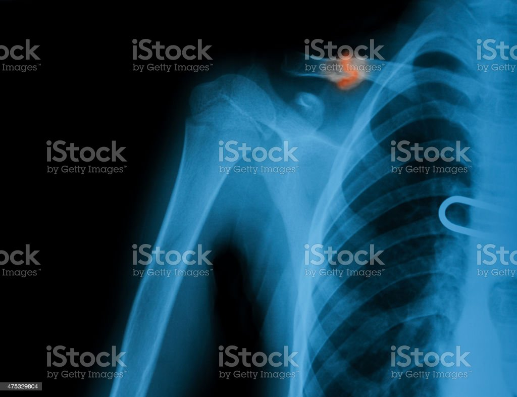 X-ray image of broken clavicle. AP view. stock photo