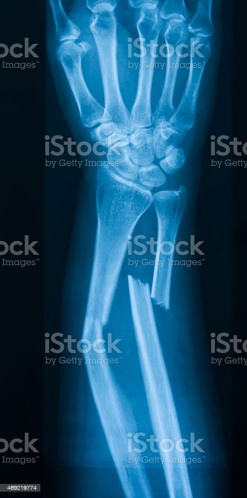 X-ray image of broken forearm, AP view stock photo