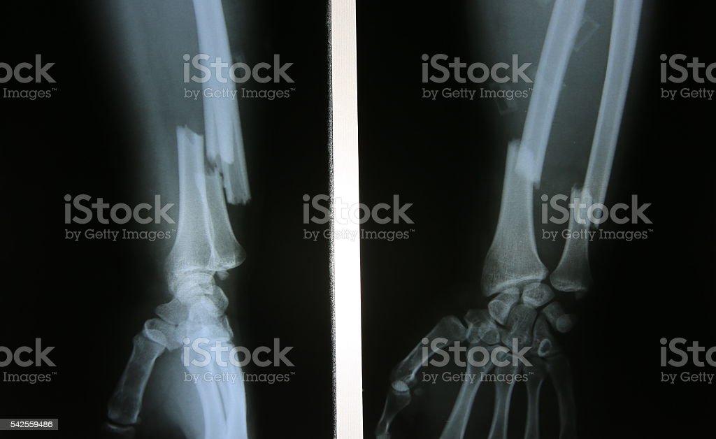 X-ray image of broken forearm stock photo